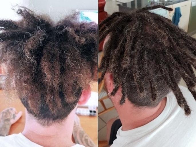 Dreadlocks removal new dreads Gold Coast